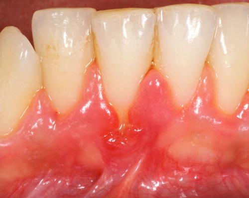Studio Dentistico Gerboni Chirurgia 01