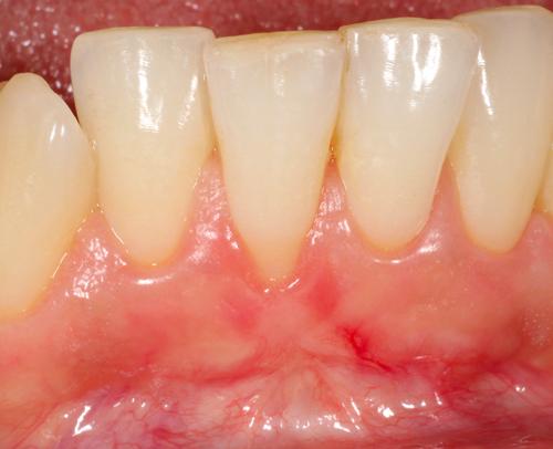 Studio Dentistico Gerboni Chirurgia 02