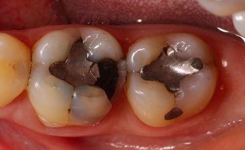 Studio Dentistico Gerboni Conservativa 01