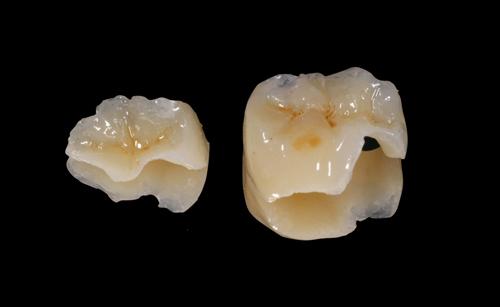 Studio Dentistico Gerboni Conservativa 03