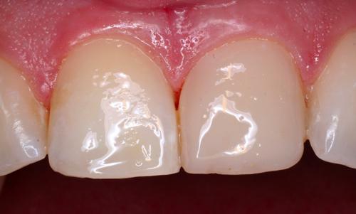 Studio Dentistico Gerboni Conservativa 05