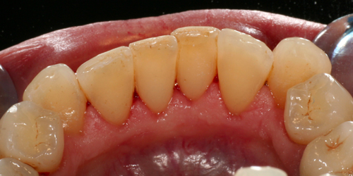 Studio Dentistico Gerboni Igiene Orale e Prevenzione 02