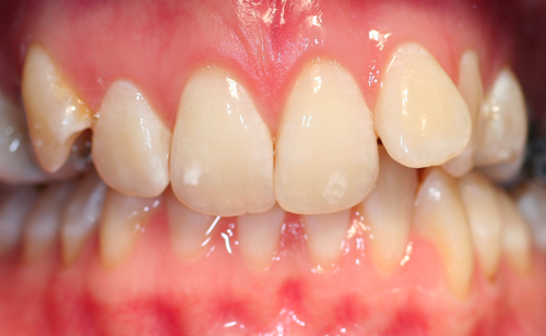 Studio Dentistico Gerboni Ortodonzia 01
