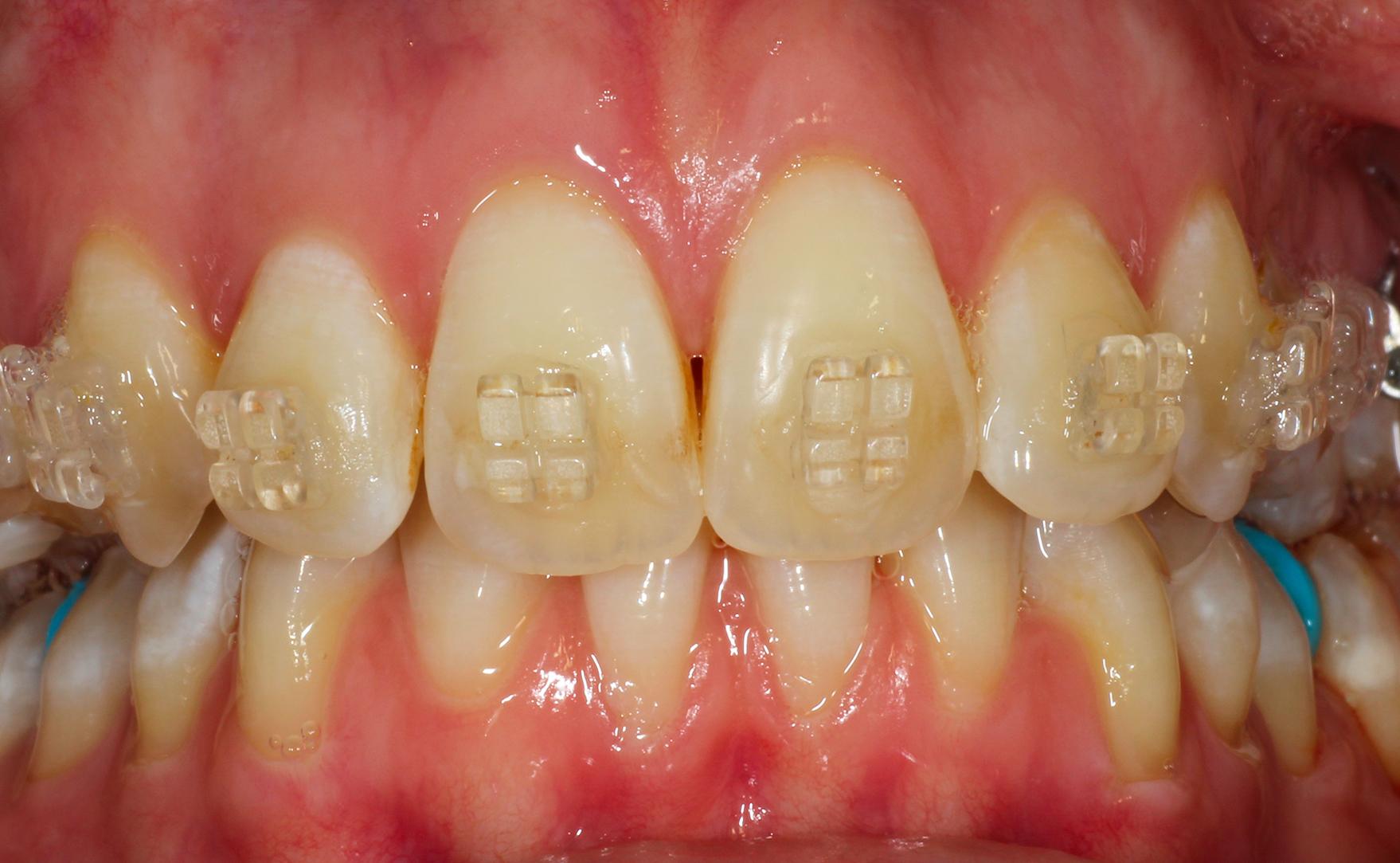 Studio Dentistico Gerboni Ortodonzia 02