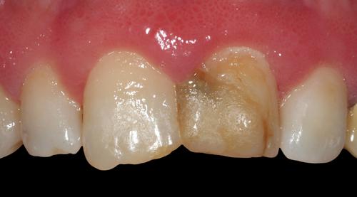 Studio Dentistico Gerboni Protesi 01